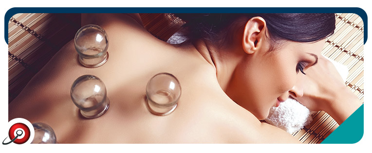 Cupping Therapy Lanham, College Park & Berwyn Heights, MD