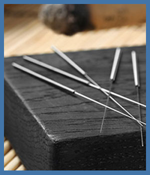 Acupuncture Treatment at Express Healthcare in College Park MD, New Carrollton MD, Falls Church VA and Vienna, VA