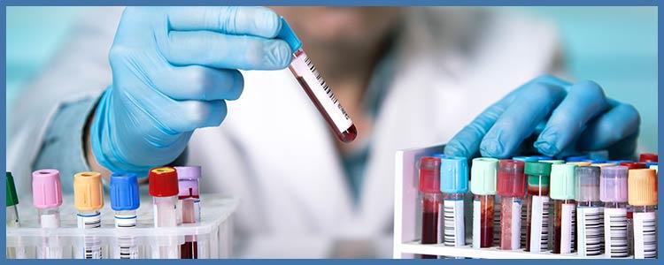 Chlamydia Testing Near Me in College Park MD, New Carrollton MD, Falls Church VA, and Tyson Corner Vienna VA