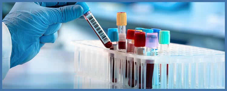 Laboratory and Toxicology Near Me in College Park MD, New Carrollton MD, Falls Church VA, and Tyson Corner Vienna VA